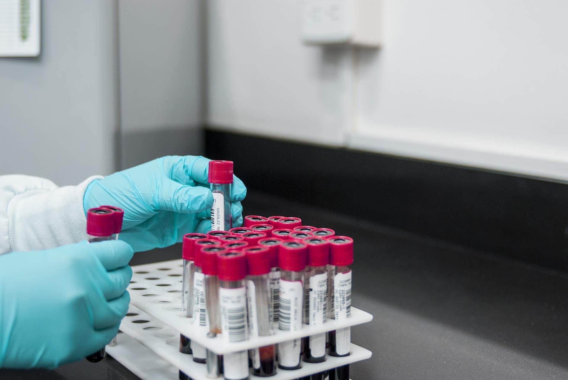 Ensayos clínicos en España: falta de transparencia y duplicidad en la investigación sobre la Covid-19